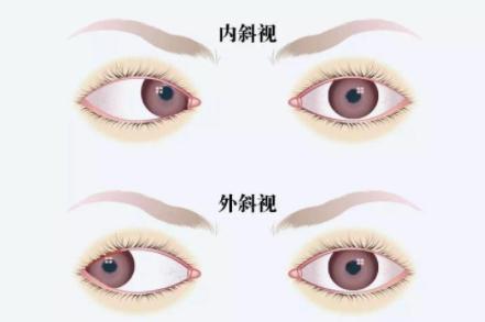 视力矫正加盟,,治疗弱视加盟