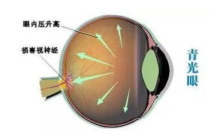 视力矫正,视力加盟友