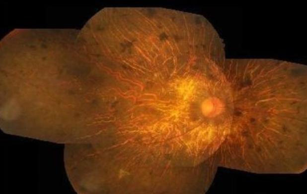 视力矫正,视力加盟,视网膜